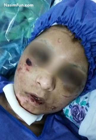 دانلود فیلم و عکس شکنجه اعظم مشهدی توسط همسر 18+