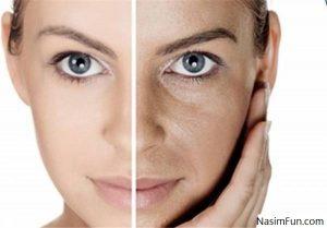 تزریق گاز co2 برای جوانسازی پوست