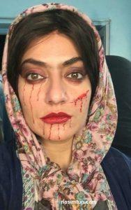 چهره زخمی وخون آلود بازیگر سرشناس زن !! +عکس