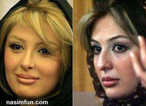 چهره بازیگران زن کشورمان قبل و بعد از جراحی بینی !!+عکس