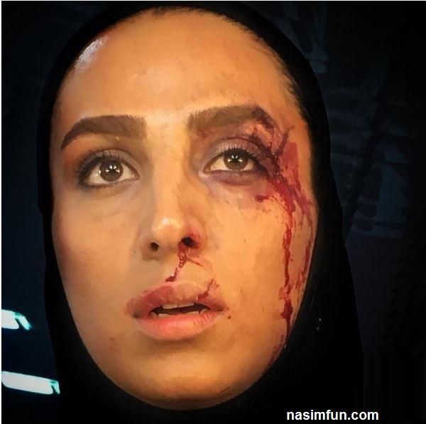 دعوا وضرب و شتم و عکس صورت خونین سوگل طهماسبی+عکس
