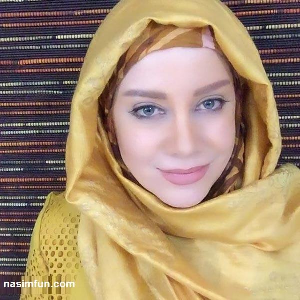 عکس هایی از چهره جدید  شراره رخام بازیگر ایرانی بعد از تخلیه ژل لبهایش!!+عکس