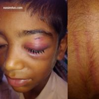 ماجرای تنبیه بدنی  ومصدومیت دانش آموز دبستانی توسط معلمش!!+عکس