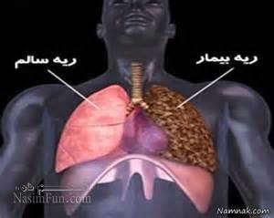 چگونه سرطان ریه را تشخیص دهیم؟