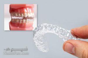 عامل ایجاد دندان قروچه در کودکان