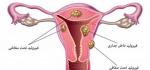فیبروم رحم چیست؟علائم آن