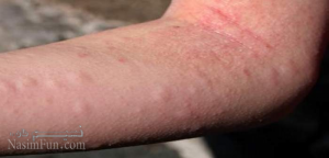 درمان کردن کهیر پوستی در خانه