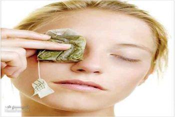 درمان سیاهی دور چشم