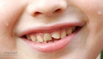 تعبیر خواب دندان - افتادن دندان در خواب چه تعبیری دارد؟