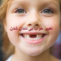 تعبیر خواب بی دندان شدن – نداشتن دندان در خواب چه تعبیری دارد؟