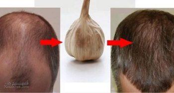 خواص سیر برای مو