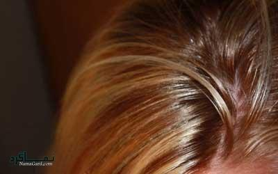 علل چرب شدن موی سر