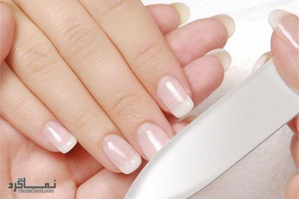 لکه های سفید روی ناخن