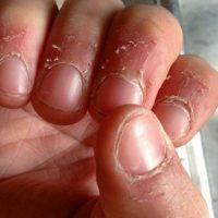 علت و درمان پوسته پوسته شدن اطراف ناخن