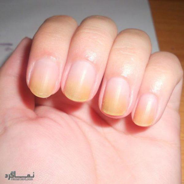 https://namagard.com/fungus-nails/