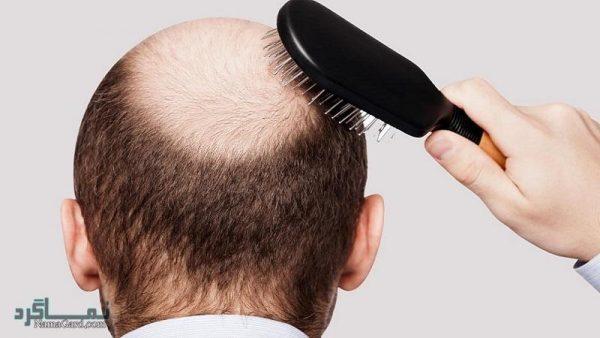 ریزش موی مردان