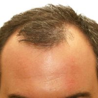 علت ریزش موی مردان چیست؟