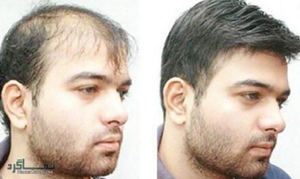 درمان ریزش موی آقایان