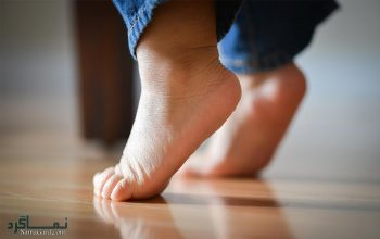 تعبیر خواب لنگیدن پا - لنگ شدن پا در خواب چه تعبیری دارد؟