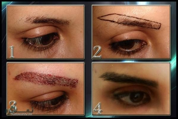 https://namagard.com/eyebrow-transplantation/