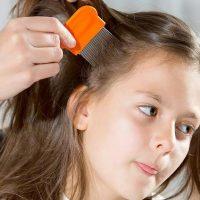 ۵ روش موثر برای درمان شپش سر با روغن زیتون