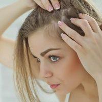 ۸ روش فوق العاده موثر برای درمان ریزش موی شقیقه