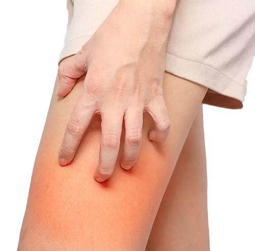 بثورات پوستی چیست؟ | ۱۵ روش درمان خانگی ساییدگی پوست