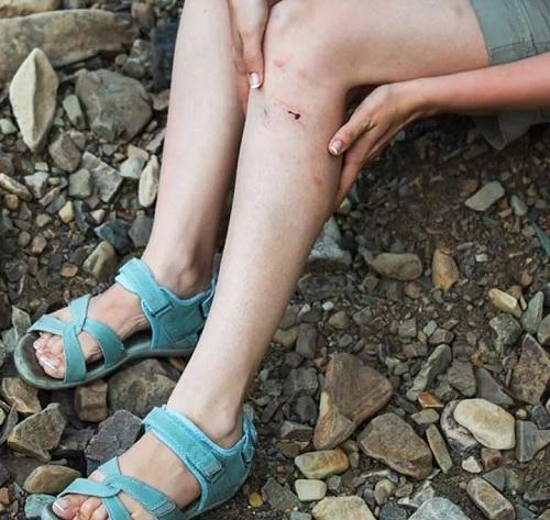 زخم پا چیست؟ | ۱۳ روش معجزه آسا خانگی برای درمان زخم های پا